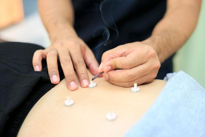 クライアントの腰にお灸をして自律神経を整え免疫力を上げる鍼灸師