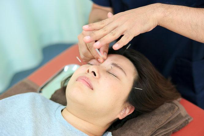 患者の顔に鍼を打ち、自律神経を整えて免疫力を上げる美容鍼を行う鍼灸師
