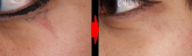 外傷性刺青+外傷性色素沈着症