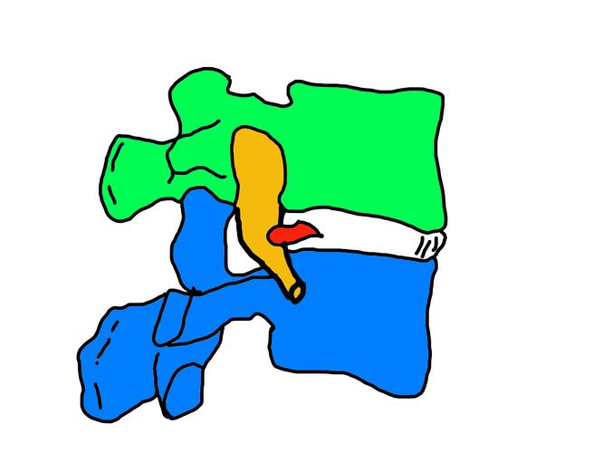 腰椎 ヘルニア