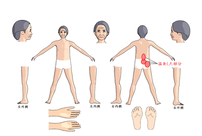 温灸と座骨神経痛