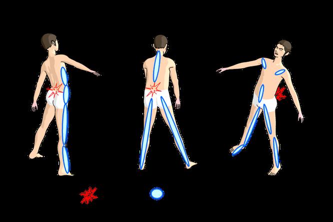 腰の痛みと置き針