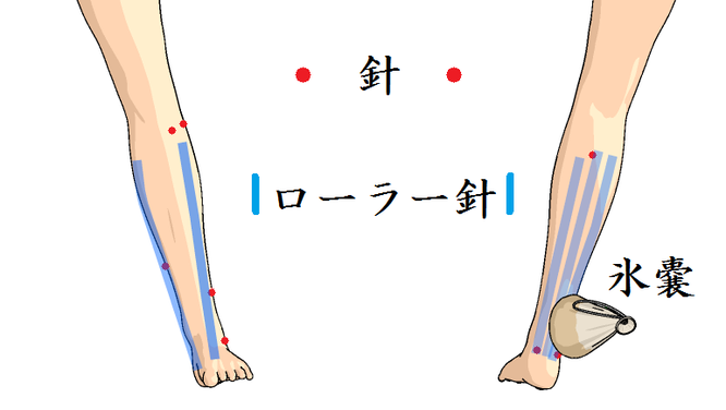 足の痛み治療図