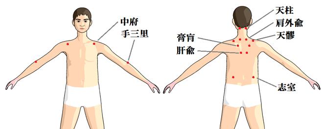 肩こりの置き針例