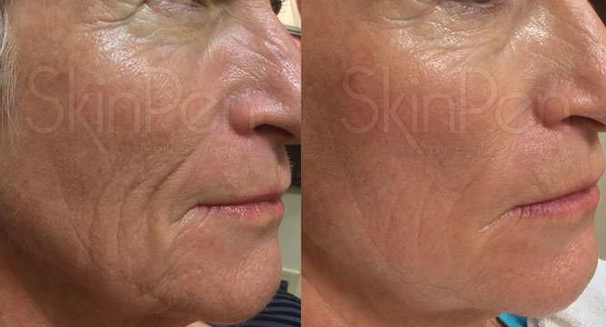 Wrinkles reduction before and after microneedling treatments