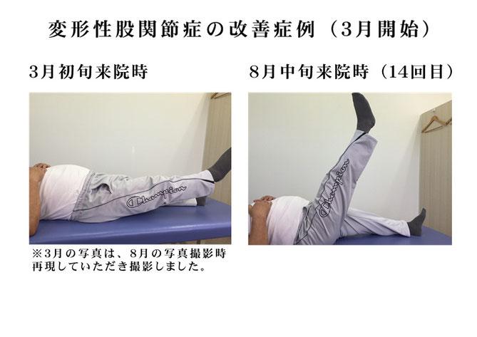 変形性股関節症で歩くのも困難な症状も根気よく施術していったら 股関節や膝、肘などの痛みのときは 長崎市の整体術治療院 掌庵!