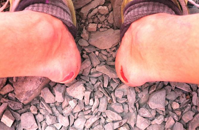 Najdroższe buty w życiu... Za dwie miesięczne pensje... Taka sytuacja w Camp 1.