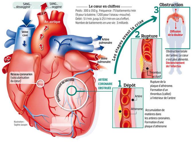 Récapitulatif du déroulement d'une crise cardiaque.