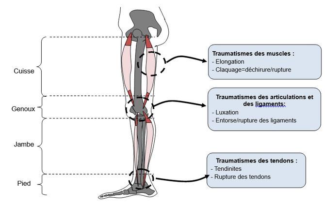 Autres exemples de traumatismes. Source : modifié de banque schéma SVT.