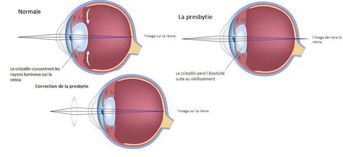 La correction de la presbytie se fait par, le port de lentilles de contacts multifocaux, la chirurgie réfractive ou le port de lunettes composées de verres convexes qui s'utilise pour la lecture. La dioptrie des verres augment avec l'âge. Source: brussels