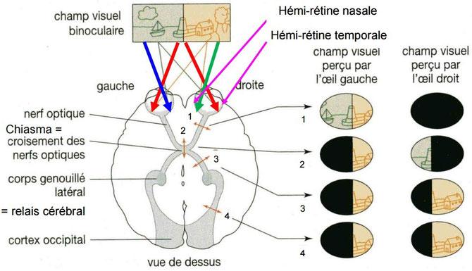 Effets de lésions sur le champ visuel de l'Homme. Source:http://svt.leverrier.free.fr/
