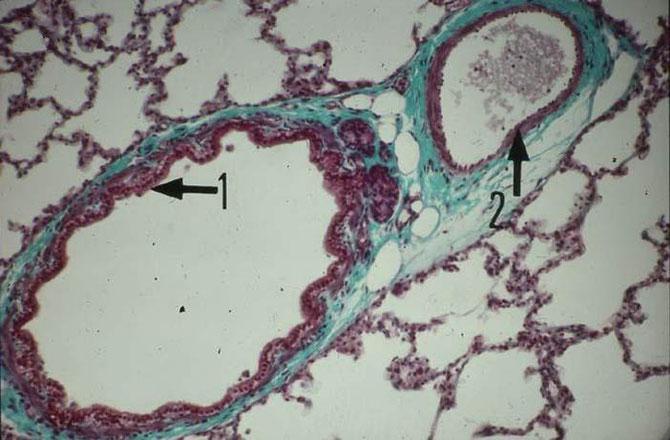 Zoom sur une bronche (1) et un vaisseau sanguin (2). Le bleu correspond au cartilage.