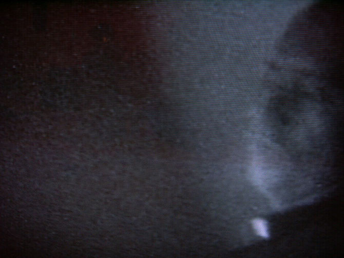 Fernseh-Bild 1