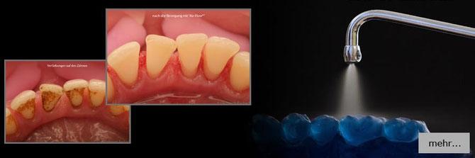 professionelle Zahnreinigung schützt vor Karies und Mundgeruch in Dieburg Schaafheim Babenhausen Aschaffenburg