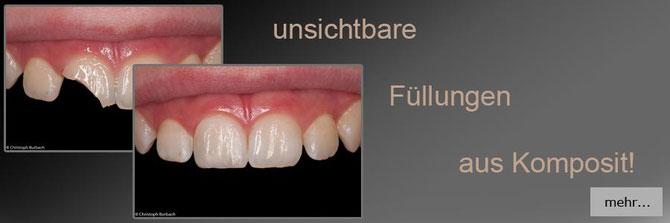 non prep veneer ohne Bohren Zahnkosmetik in Dieburg Babenhausen Aschaffenburg