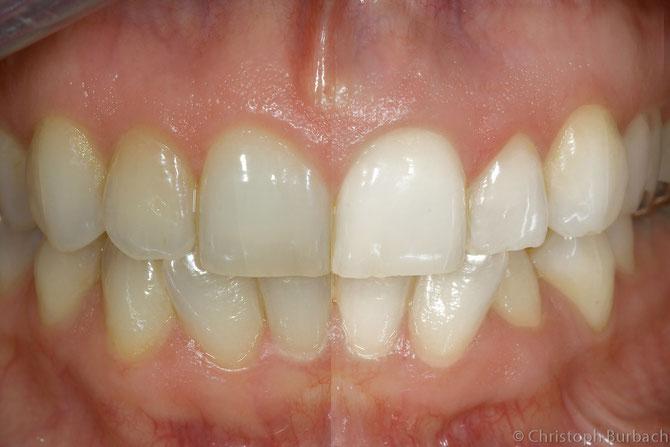 weiße Zähne mit Bleaching