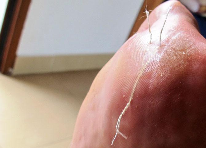 Die erste Blasen. Nadel und Faden ist die beste Methode die Blasen trocken zu legen. Der Verfahren ist wahrscheinlich schulmedizinisch nicht konform, aber es funktioniert und man kann am nächsten Tag weiter Laufen