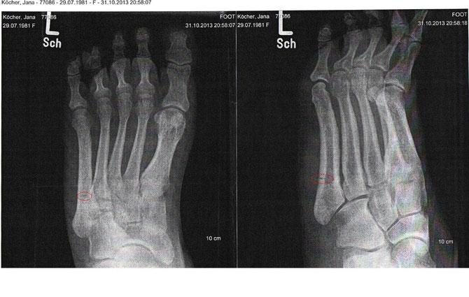 Die Röntgenbilder