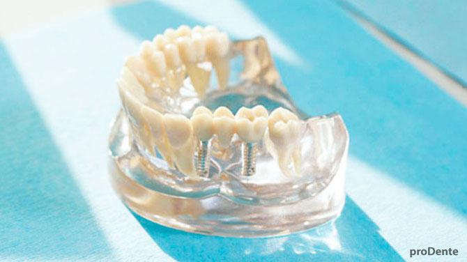 prodente Implantologie Zahnarzt