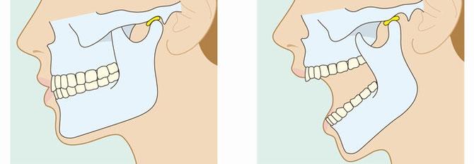 顎関節構造イメージ画像