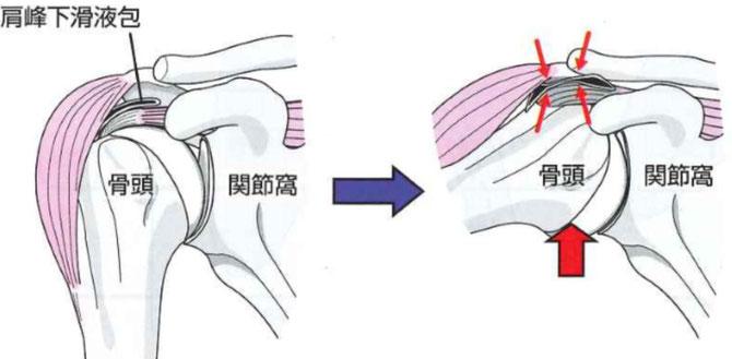 肩関節内組織の挟み込み