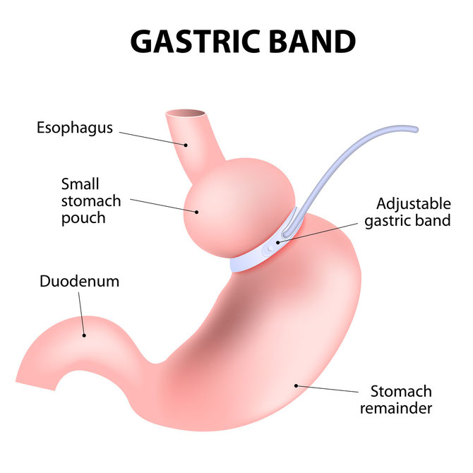 Gastric Band can be performed by Dr. Joseph Morris in Newnan, Georgia. Dr. Morris performs this procedure at Piedmont Newnan Hospital.