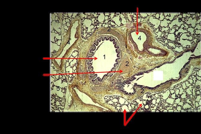 Coupe transversale d'un poumon humain observé au microscope optique. Sources: modifié de http://www.ulb.ac.be/sciences/biolhc/chap02/chap06/atlas_AR05.html