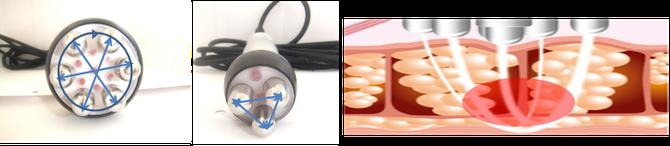 電極間を放射状に流れる           脂肪細胞に働きかけるRFのイメージ