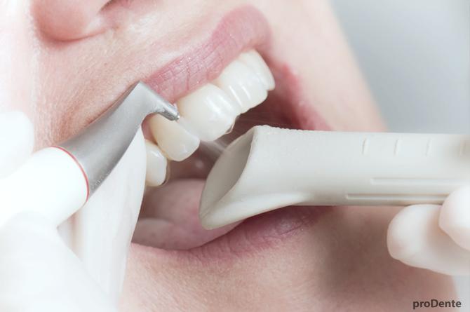 prodente Zahnreinigung