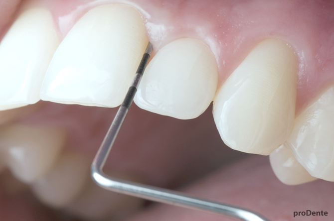 prodente parodontologie