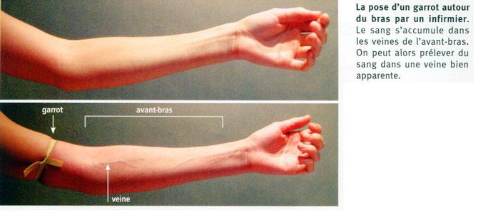 La pose d'un garrot autour du bras. Source: SVT, BELIN, 5è p99