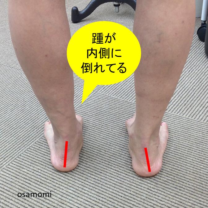 オサモミ整体院 後脛骨筋腱機能不全