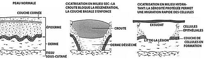 La cicatrisation en milieu humide et en milieu sec