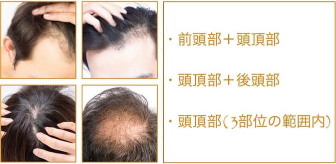 育毛・発毛鍼灸 3部位