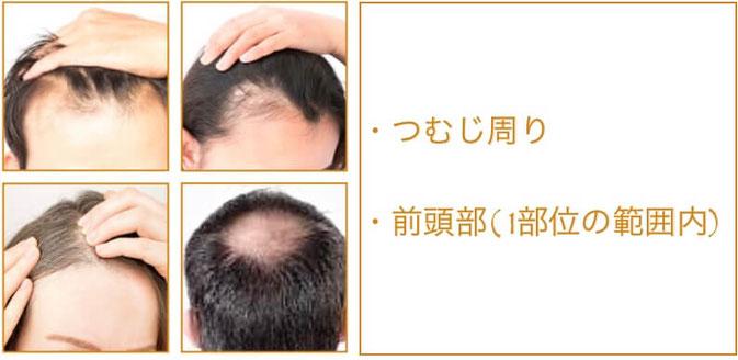 育毛・発毛鍼灸1部位