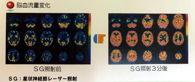 星状神経節 脳血流