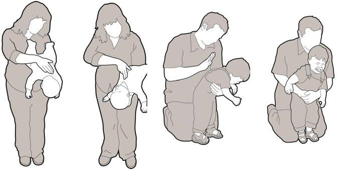 Maniobras de actuación ante atragantamientos en menor de un año y en niño de uno a ocho años