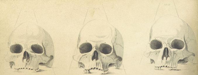 Ausführliches Gerichtsgutachten über einen Mörder des 19. Jahrhunderts