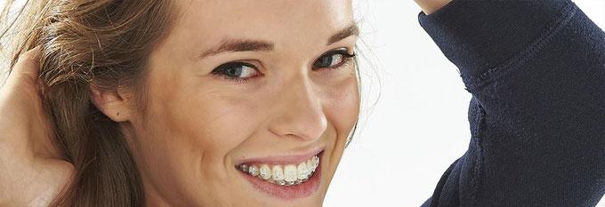 Festsitzende Zahnspangen mit transparenten Brackets (oben) und solchen aus Metall (unten)