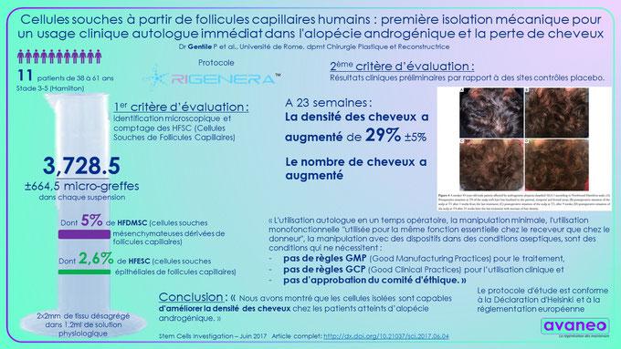 article clinique Dr Gentile traitement de l'alopécie androgénique avec Rigenera