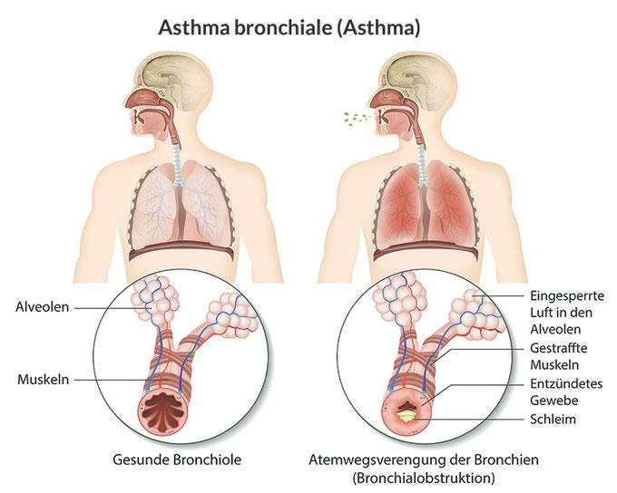 Die Atemmethode, Mag. Anna Wach, buteyko.at