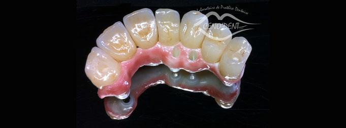 Bridge sur implant, Nobel biocare, Zircone, céramique, antérieures