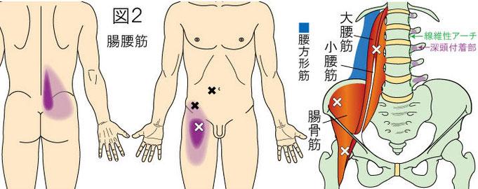 腸腰筋(大腰筋・腸骨筋)トリガーポイントによる腰・鼠径部・大腿部の痛み