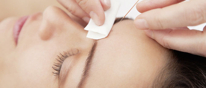 Augenakupunktur bei Heilpraktikerin Gitta Schwind in Gräfelfing