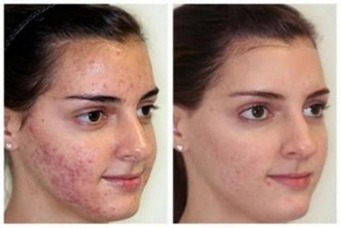 institut acné problèmes peau beauté spa soins visage corps massages épilation tour du pins