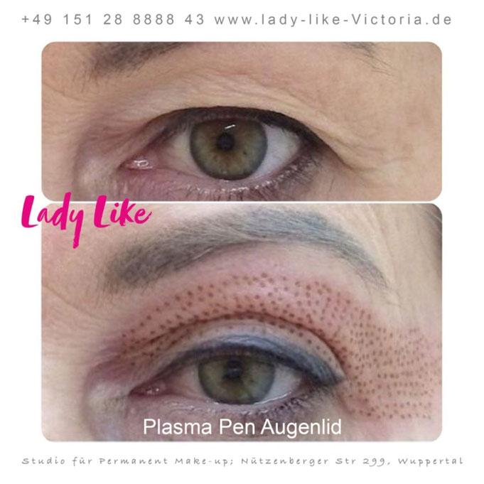 Plasma Pen am Augenlid