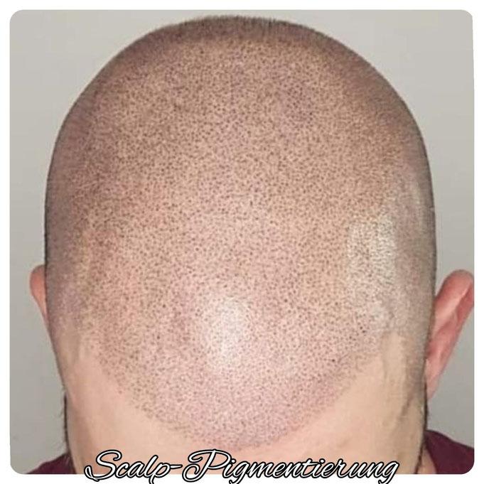Scalp Micropigmentierung
