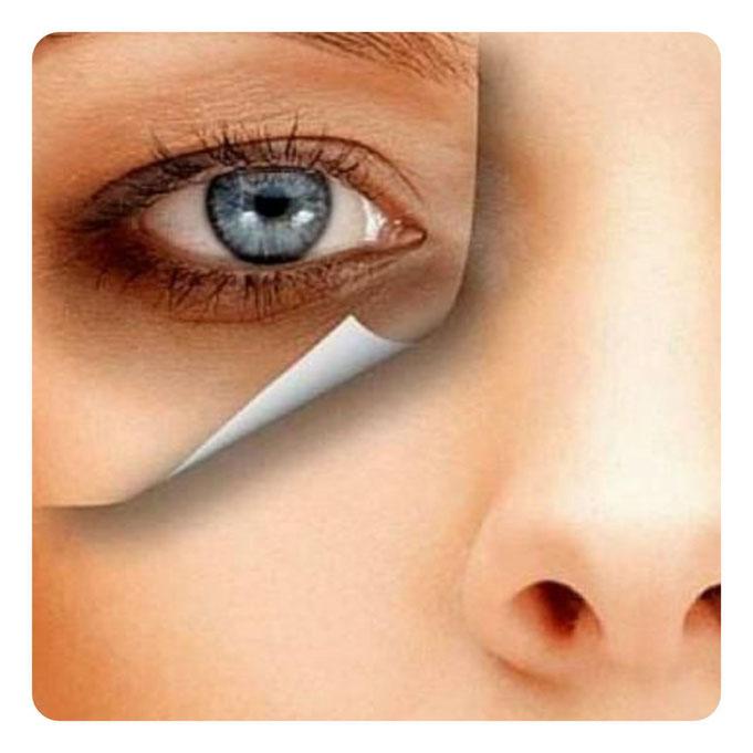 Dunkle Augenringe Sund die Ursache für einen Leidensdruck bei Betroffenen.