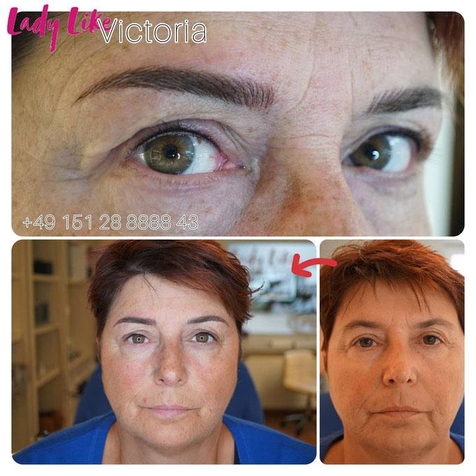 Neue Augenbrauen und Wimpernkranz