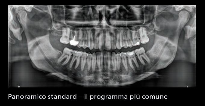 In formato digitale: esame immediatamente condivisibile col  paziente